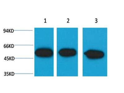beta III tubulin Mouse Monoclonal Antibody