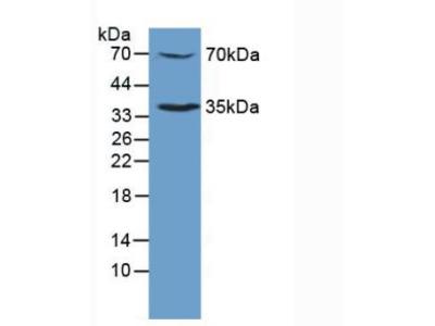 Polyclonal Antibody to Myeloproliferative Leukemia Virus Oncogene (MPL)