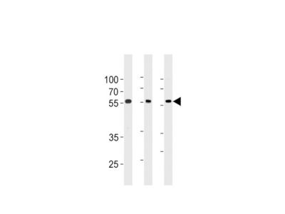 TRIM6 Antibody (N-term)