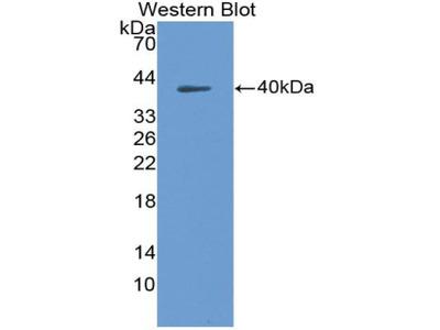 Polyclonal Antibody to Macrophage Derived Chemokine (MDC)