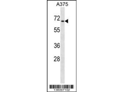 CDYL Antibody (N-term)