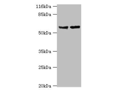 Rabbit anti-human Steroid 17-alpha-hydroxylase/17, 20 lyase polyclonal Antibody