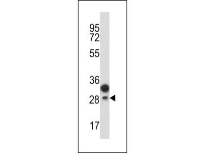CD201 Antibody (Center)