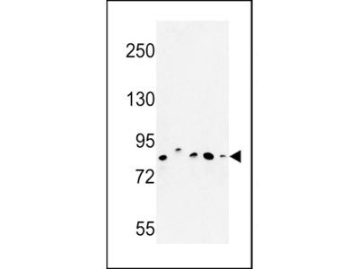 CHPF Antibody (Center)