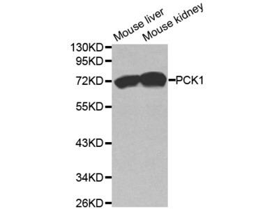 PCK1 Antibody