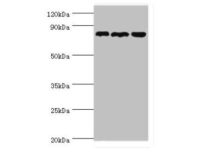 Rabbit anti-human Aspartyl/asparaginyl beta-hydroxylase polyclonal Antibody