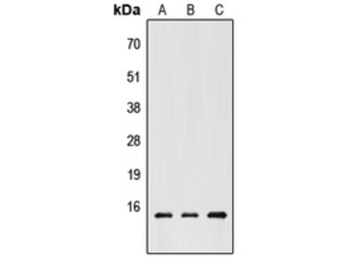 Anti-CHRAC1 Antibody