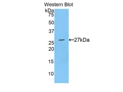 Polyclonal Antibody to A Disintegrin And Metalloprotease 10 (ADAM10)