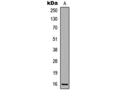 Anti-p16 INK4a (pS326) Antibody