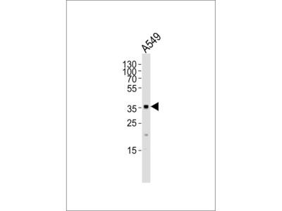 AKR1C2 Antibody