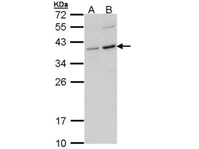 CD272 antibody