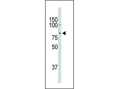DCAMKL1 Antibody (C-term)
