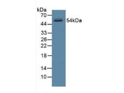 Polyclonal Antibody to Fucosidase Alpha L1, Tissue (FUCa1)