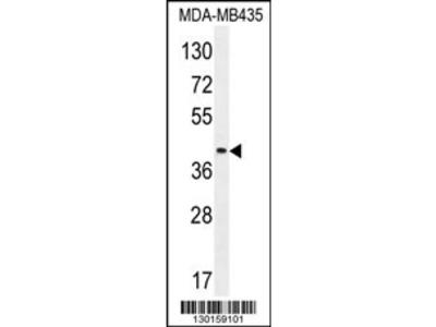 LILRA5 Antibody (N-term)