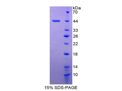 Recombinant Serum Amyloid A4, Constitutive (SAA4)