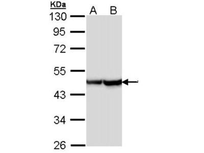 Alpha Smooth Muscle Actin antibody