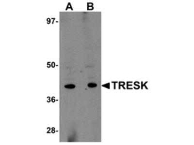 TRESK Antibody