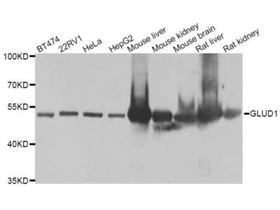 GLUD1 Polyclonal Antibody