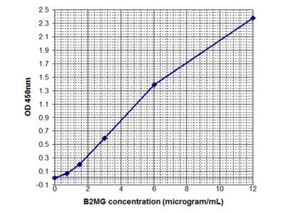Beta2-Microglobulin