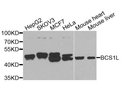 BCS1L Polyclonal Antibody