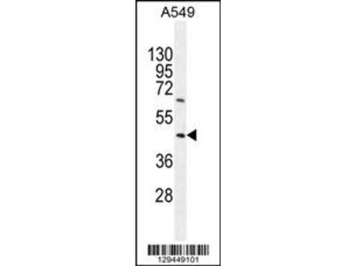 TRIM43 Antibody (Center)