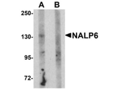 NALP6 Antibody