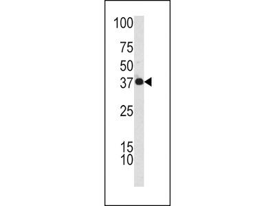 CFHL1 Antibody (C-term)