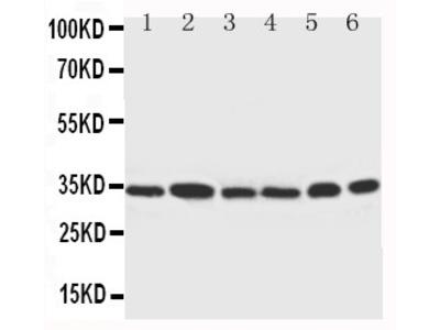 Anti-Cdk4 antibody