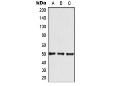 Anti-GLUT4 Antibody