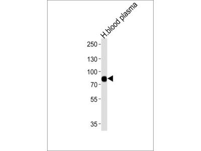 LRRC45 Antibody (C-term)