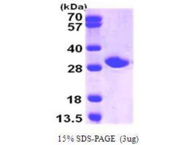 Recombinant Human Nicotinamide N-Methyltransferase / NNMT Protein