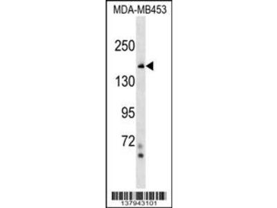 NFKBIL2 Antibody (N-term)