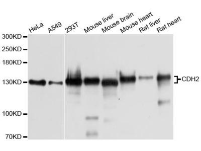 CDH2 Polyclonal Antibody