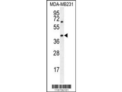 AMACR Antibody (C-term)
