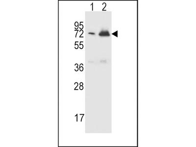 CFHR5 Antibody (Center)