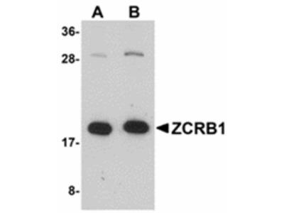 ZCRB1 Antibody