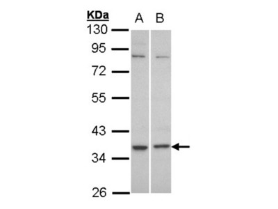 C5L2 antibody