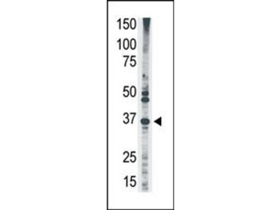 MAGEA2 Antibody (N-term)