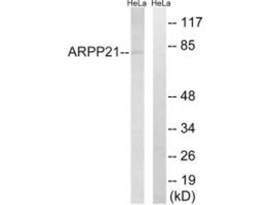 ARPP21 Antibody
