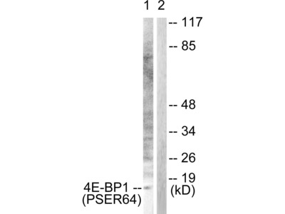 4E-BP1 (Phospho-Ser64) Antibody