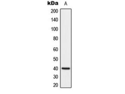 Anti-DUSP1 Antibody