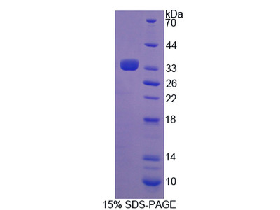 Recombinant Adrenergic Receptor Beta Kinase 2 (ADRbK2)