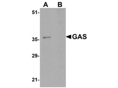GAS Antibody