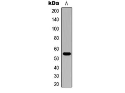 Anti-Cytochrome P450 21A2 Antibody