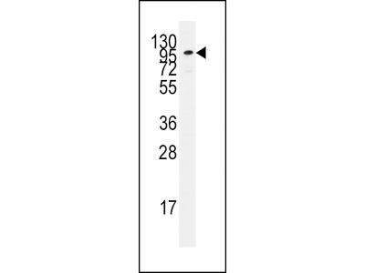ADCY2 Antibody (C-term)