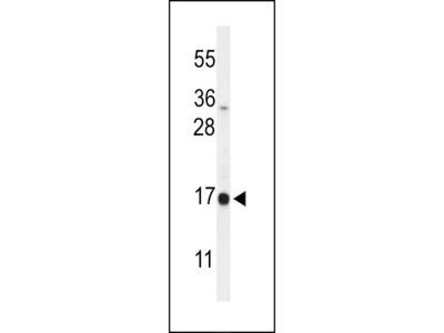 DAZAP2 Antibody (C-term)