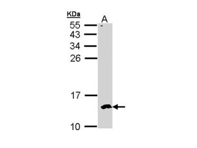 CKS-2 antibody