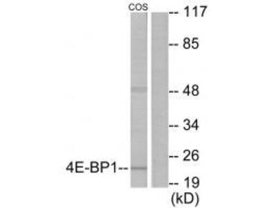 4E-BP1 (Ab-69) Antibody