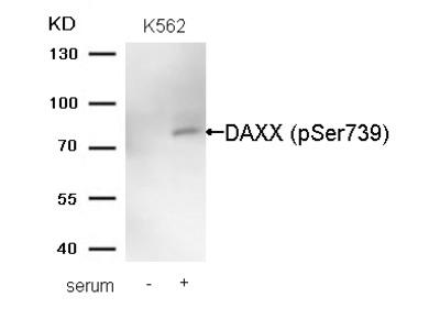 DAXX (Phospho-Ser739) Antibody