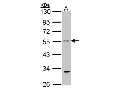 beta Tubulin 3 antibody